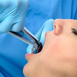 Relaxed woman having tooth removed