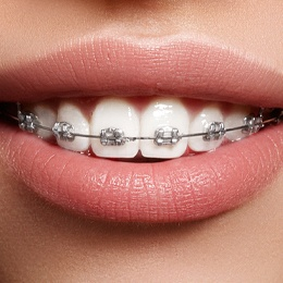 Closeup of smile with braces