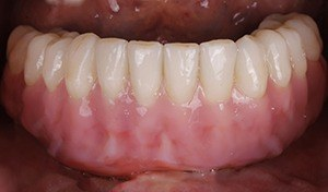 Natural looking implant supported denture - patient 2